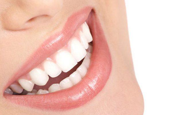 Estética dental: cómo revitalizar tu sonrisa