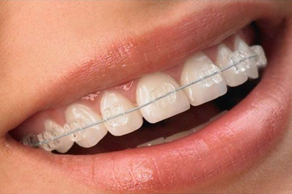 Ortodoncia: tratamientos que no perjudican la estética