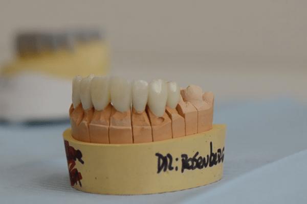 Rehabilitación oral: Coronas vs. Carillas