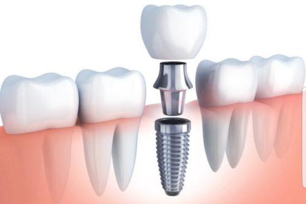 ¿Necesitas un implante dental? ¡Aclaramos aquí todas tus dudas!