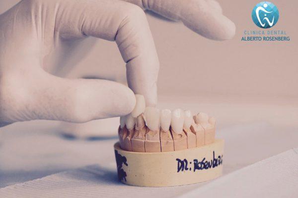 Carillas Dentales: ¿Son compatibles si tengo bruxismo?