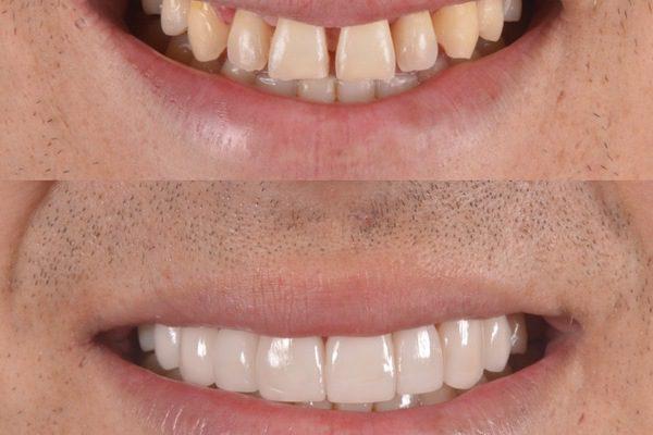 ¿Cuándo es necesario una reconstrucción dental?