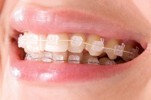 Brackets de Zafiro: ¿Conoces sus beneficios?