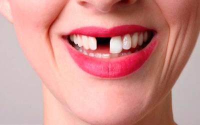Estos 5 mitos de salud bucal te están haciendo cometer errores