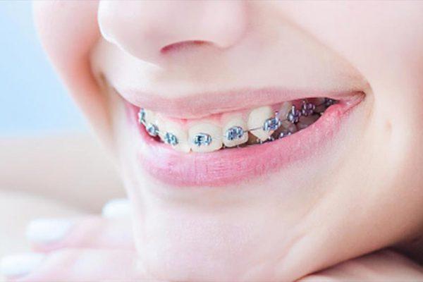 Mi hijo/a necesita frenillos: Todo sobre la ortodoncia infantil