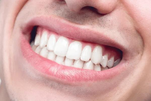 Dientes blancos: 5 consejos para conseguirlos
