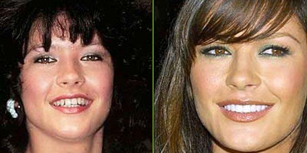 ¿Cuál es el secreto de las sonrisas de Hollywood? ¡Te decimos cómo obtenerlas!