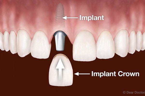 ¿Puede esperar la colocación de Implantes, o podría complicarse?