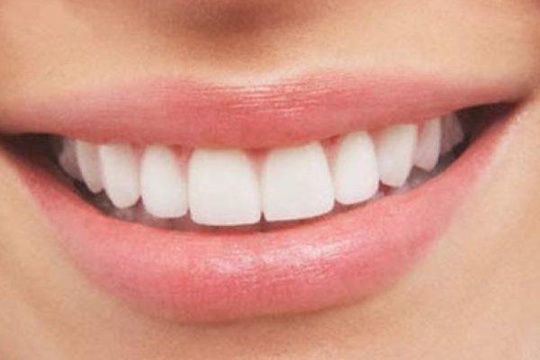 ¿Sabías que los Implantes superan el 90% de éxito?